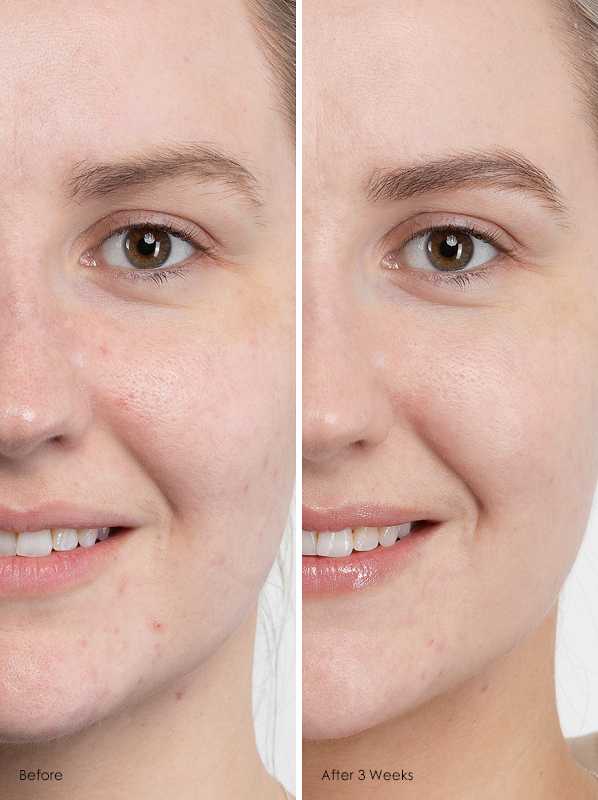 Before and after caudalie vinopure skincare