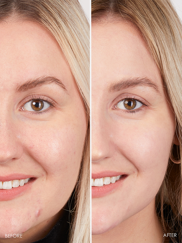 Before and After Eucerin Hyaluron-Filler 10% Pure Vitamin C Booster