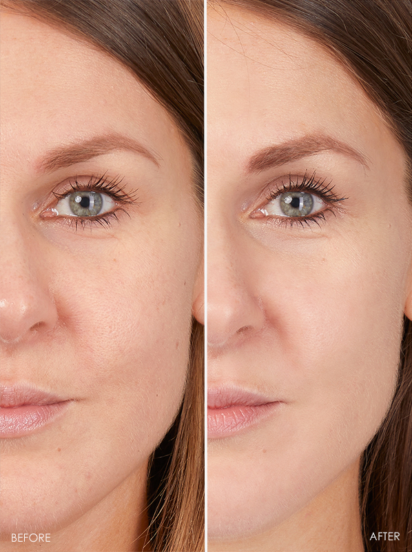 Before and after model image of eucerin Hyaluron-Filler 10% Pure Vitamin C Booster
