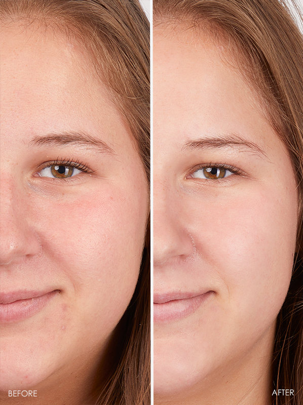 before and after eucerin 10% pure vitamin c booster