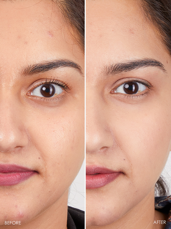 Before and after using Eucerin Hyaluron-Filler 10% Pure Vitamin C Booster
