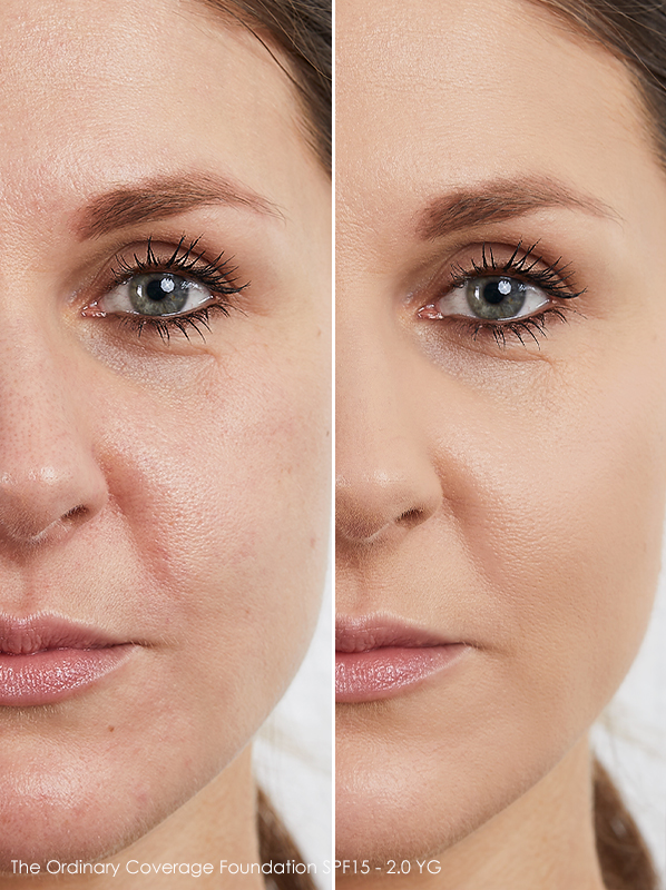 Before and after Image of model wearing The Ordinary Coverage Foundation SPF15 in 2.0YG