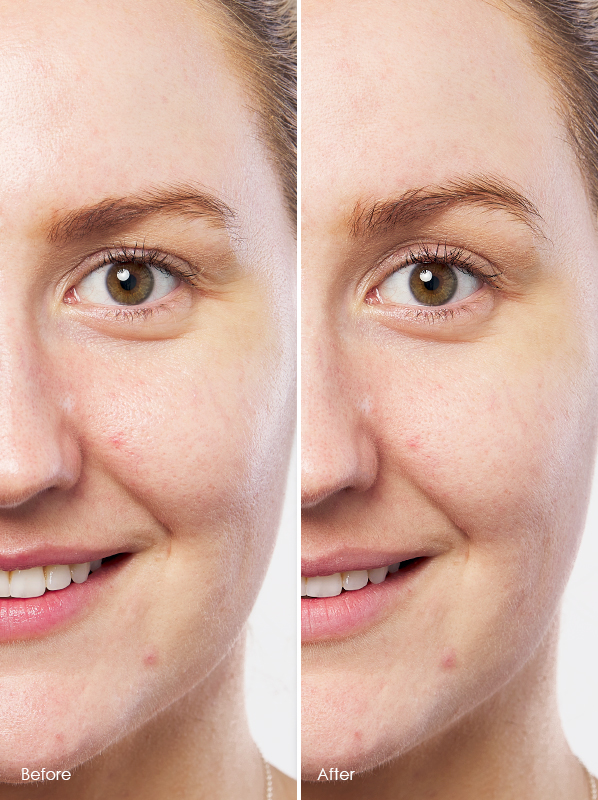 Model image of Dermalogica Daily Microfoliant before and after