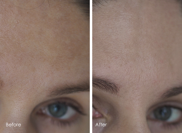 How I Reduced My Pigmentation In 4 Weeks