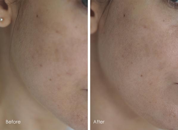 How I reduced my pigmentation in 4 weeks: Bioderma Pigmentbio