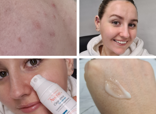 Chelsey 202 beauty favourite Avene Cleanance Comedomed Anti-Blemishes Concentrate